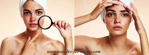 Huile d'olive acné